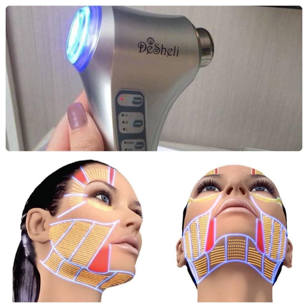 Косметические аппараты дешели для лица. сам себе косметолог себе и на подарок фото №1